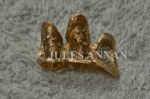 Genuine gold dental caps that were removed by the Nazi's from Jewish inmates on their arrival to  Auschwitz during the holocaust years