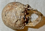 Skull remains of a former Ustacha militia- Black Legion officer, who had been severely beaten and then executed with his own Walther PPK hand pistol through the back of his head with a 7.65 mm calibre bullet, the entrance and exit holes being clearly evident .