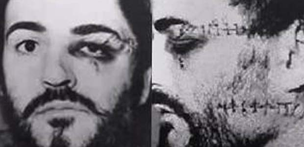 Peter-Sutcliffe-Attack-by-James-Costello
