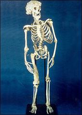 Joseph_Merrick_skeleton